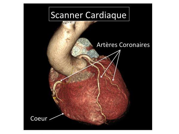 figure-scanner-cardiaque