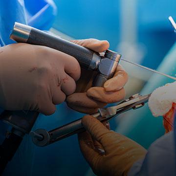 chirurgie-orthopedique-membres-superieurs