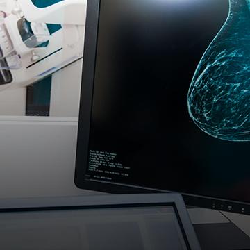 radiologie interventionnelle et biopsie